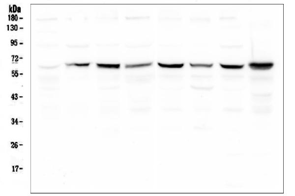 Figure 6. Western blot analysis of SQSTM1 using anti-SQSTM1 antibody (PB9444). <br> Electrophoresis was performed on a 5-20% SDS-PAGE gel at 70V (Stacking gel) / 90V (Resolving gel) for 2-3 hours. The sample well of each lane was loaded with 50ug of sample under reducing conditions. <br> Lane 1: human placenta tissue lysates, <br> Lane 2: COS7 whole cell lysates <br> Lane 3: A549 whole cell lysates, <br> Lane 4: U87 whole cell lysates. <br> Lane 5: Hela whole cell lysates. <br> Lane 6: Caco-2 whole cell lysates. <br> Lane 7: Hepg2 whole cell lysates. <br> Lane 8: THP-1 whole cell lysates. <br> After Electrophoresis, proteins were transferred to a Nitrocellulose membrane at 150mA for 50-90 minutes. Blocked the membrane with 5% Non-fat Milk/ TBS for 1.5 hour at RT. The membrane was incubated with rabbit anti-SQSTM1 antigen affinity purified polyclonal antibody (Catalog # PB9444) at 0.5 μg/mL overnight at 4°C, then washed with TBS-0.1%Tween 3 times with 5 minutes each and probed with a goat anti-rabbit IgG-HRP secondary antibody at a dilution of 1:10000 for 1.5 hour at RT. The signal is developed using an Enhanced Chemiluminescent detection (ECL) kit (Catalog # EK1002) with Tanon 5200 system. A specific band was detected for SQSTM1 at approximately 62KD. The expected band size for SQSTM1 is at 62KD.