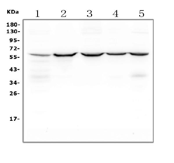 Figure 7. Western blot analysis of SQSTM1 using anti-SQSTM1 antibody (PB9444).  <br> Electrophoresis was performed on a 5-20% SDS-PAGE gel at 70V (Stacking gel) / 90V (Resolving gel) for 2-3 hours. The sample well of each lane was loaded with 50ug of sample under reducing conditions. <br>  Lane 1: rat PC-12 whole cell lysates<br> Lane 2: rat RH35 whole cell lysates<br> Lane 3: mouse HEPA1-6 whole cell lysates<br> Lane 4: mouse NIH/3T3 whole cell lysates<br> Lane 5: mouse RAW246.7 whole cell lysates  <br> After Electrophoresis, proteins were transferred to a Nitrocellulose membrane at 150mA for 50-90 minutes. Blocked the membrane with 5% Non-fat Milk/ TBS for 1.5 hour at RT. The membrane was incubated with rabbit anti-SQSTM1 antigen affinity purified polyclonal antibody (Catalog # PB9444) at 0.5 μg/mL overnight at 4°C, then washed with TBS-0.1%Tween 3 times with 5 minutes each and probed with a goat anti-rabbit IgG-HRP secondary antibody at a dilution of 1:10000 for 1.5 hour at RT. The signal is developed using an Enhanced Chemiluminescent detection (ECL) kit (Catalog # EK1002) with Tanon 5200 system. A specific band was detected for SQSTM1 at approximately 62KD. The expected band size for SQSTM1 is at 62KD.