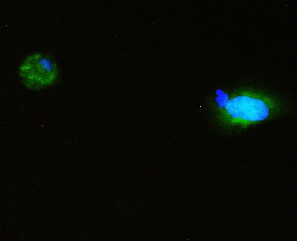 Figure 4. IF analysis of SQSTM1 using anti- SQSTM1 antibody (PB9444).<br> SQSTM1 was detected in immunocytochemical section of A431 cell. Enzyme antigen retrieval was performed using IHC enzyme antigen retrieval reagent (AR0022) for 15 mins. The cells were blocked with 10% goat serum. And then incubated with 2μg/mL rabbit anti- SQSTM1 Antibody (PB9444) overnight at 4°C. DyLight®488 Conjugated Goat Anti-Rabbit IgG (BA1127) was used as secondary antibody at 1:100 dilution and incubated for 30 minutes at 37°C.  The section was counterstained with DAPI. Visualize using a fluorescence microscope and filter sets appropriate for the label used.
