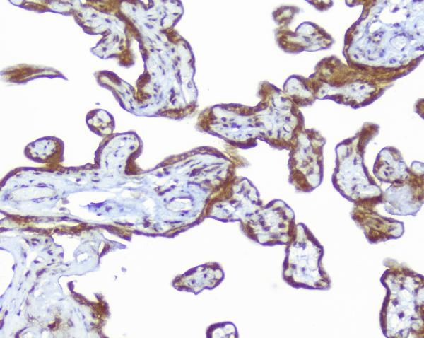 Figure 2. IHC analysis of CD46 using anti- CD46 antibody (PB9486).<br> CD46 was detected in paraffin-embedded section of human placenta tissues. Heat mediated antigen retrieval was performed in citrate buffer (pH6, epitope retrieval solution) for 20 mins. The tissue section was blocked with 10% goat serum. The tissue section was then incubated with 1μg/ml rabbit anti- CD46 Antibody (PB9486) overnight at 4°C. Biotinylated goat anti-rabbit IgG was used as secondary antibody and incubated for 30 minutes at 37°C. The tissue section was developed using Strepavidin-Biotin-Complex (SABC)(Catalog # SA1022) with DAB as the chromogen.