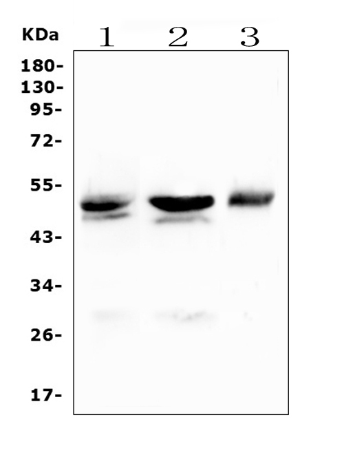 Figure 5. Western blot analysis of CD46 using anti-CD46 antibody (PB9486). <br> Electrophoresis was performed on a 5-20% SDS-PAGE gel at 70V (Stacking gel) / 90V (Resolving gel) for 2-3 hours. The sample well of each lane was loaded with 50ug of sample under reducing conditions. <br> Lane 1: rat liver tissue lysates, <br> Lane 2: mouse liver tissue lysates, <br> Lane 3: mouse Neuro-2a whole cell lysates. <br> After Electrophoresis, proteins were transferred to a Nitrocellulose membrane at 150mA for 50-90 minutes. Blocked the membrane with 5% Non-fat Milk/ TBS for 1.5 hour at RT. The membrane was incubated with rabbit anti-CD46 antigen affinity purified polyclonal antibody (Catalog # PB9486) at 0.5 μg/mL overnight at 4°C, then washed with TBS-0.1%Tween 3 times with 5 minutes each and probed with a goat anti-rabbit IgG-HRP secondary antibody at a dilution of 1:10000 for 1.5 hour at RT. The signal is developed using an Enhanced Chemiluminescent detection (ECL) kit (Catalog # EK1002) with Tanon 5200 system. A specific band was detected for CD46 at approximately 50KD. The expected band size for CD46 is at 44KD.