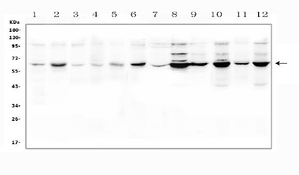 Figure 1. Western blot analysis of SLC19A1 using anti-SLC19A1 antibody (PB9504). <br> Electrophoresis was performed on a 5-20% SDS-PAGE gel at 70V (Stacking gel) / 90V (Resolving gel) for 2-3 hours. The sample well of each lane was loaded with 50ug of sample under reducing conditions. <br> Lane 1: rat brain tissue lysates, <br> Lane 2: rat ovary tissue lysates, <br> Lane 3: mouse brain tissue lysates, <br> Lane 4: mouse testicular tissue lysates, <br> Lane 5: mouse ovary tissue lysates, <br> Lane 6: mouse NIH/3T3 whole cell lysates, <br> Lane 7: human placenta tissue lysates, <br> Lane 8: human HEK293 whole cell lysates, <br> Lane 9: monkey COS-7 whole cell lysates, <br> Lane 10: human PC-3 whole cell lysates, <br> Lane 11: human 22RV1 whole cell lysates, <br> Lane 12: human K562 whole cell lysates. <br> After Electrophoresis, proteins were transferred to a Nitrocellulose membrane at 150mA for 50-90 minutes. Blocked the membrane with 5% Non-fat Milk/ TBS for 1.5 hour at RT. The membrane was incubated with rabbit anti-SLC19A1 antigen affinity purified polyclonal antibody (Catalog # PB9504) at 0.5 μg/mL overnight at 4°C, then washed with TBS-0.1%Tween 3 times with 5 minutes each and probed with a goat anti-rabbit IgG-HRP secondary antibody at a dilution of 1:10000 for 1.5 hour at RT. The signal is developed using an Enhanced Chemiluminescent detection (ECL) kit (Catalog # EK1002) with Tanon 5200 system. A specific band was detected for SLC19A1 at approximately 65KD. The expected band size for SLC19A1 is at 65KD.