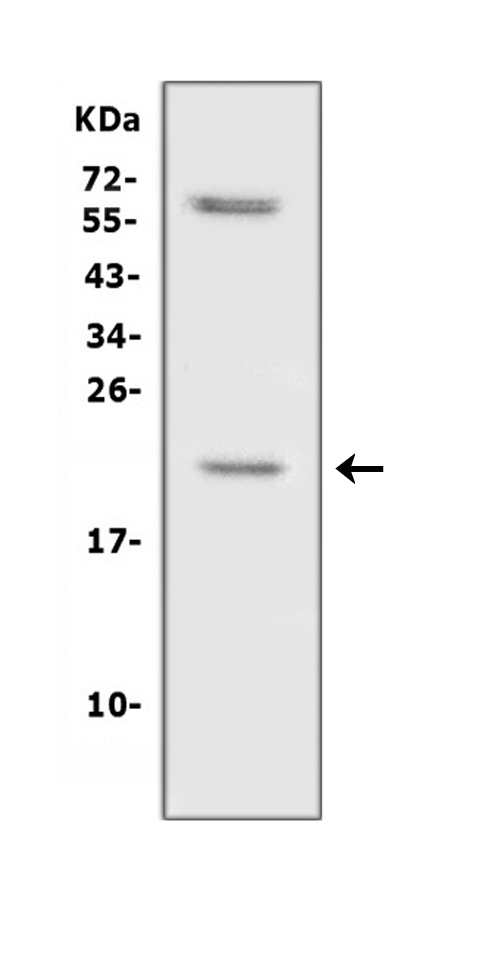 Figure 1. Western blot analysis of IL10 using anti- IL10 antibody (RP1016). <br> Electrophoresis was performed on a 5-20% SDS-PAGE gel at 70V (Stacking gel) / 90V (Resolving gel) for 2-3 hours. The sample well of each lane was loaded with 50ug of sample under reducing conditions. <br> Lane 1: rat spleen tissue lysates, <br> After Electrophoresis, proteins were transferred to a Nitrocellulose membrane at 150mA for 50-90 minutes. Blocked the membrane with 5% Non-fat Milk/ TBS for 1.5 hour at RT. The membrane was incubated with rabbit anti- IL10 antigen affinity purified polyclonal antibody (Catalog # RP1016) at 0.5 μg/mL overnight at 4°C, then washed with TBS-0.1%Tween 3 times with 5 minutes each and probed with a goat anti-rabbit IgG-HRP secondary antibody at a dilution of 1:10000 for 1.5 hour at RT. The signal is developed using an Enhanced Chemiluminescent detection (ECL) kit (Catalog # EK1002) with Tanon 5200 system. A specific band was detected for IL10 at approximately 21KD. The expected band size for IL10 is at 21KD.