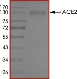 The purity of ACE2 was determined to be >95% by densitometry, approx. MW ~130kDa.