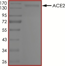 The purity of ACE2 (19-740) was determined to be >95% by densitometry, approx. MW ~150 kDa.