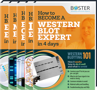 IHC, WB, ELISA & Flow Cytometry Troubleshooting Guides