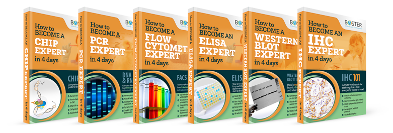 boster troubleshooting guides for ELISA Western blot Immunohistochemistry
