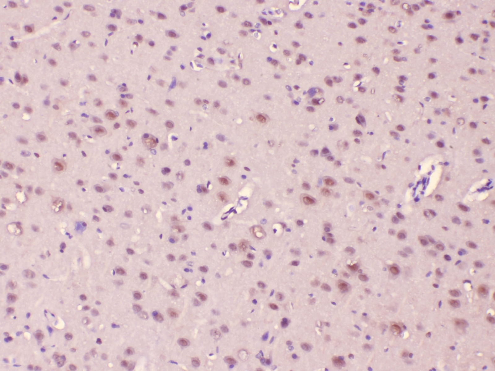 improved staining of rat brain tissue using Boster troubleshooting tips
