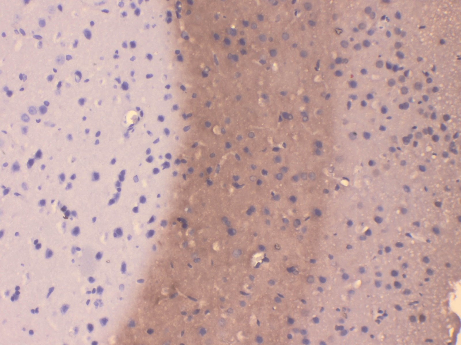 high background staining of rat brain tissue stained with anti-VCP antibody