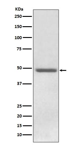 Anti-ADFP PLIN2 Rabbit Monoclonal Antibody